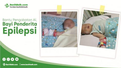 Bantu Pengobatan Al, Bayi Penderita Epilepsi