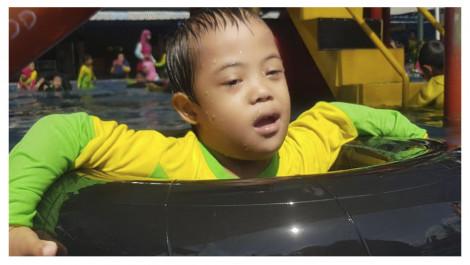 Irfan Hanif Perlu Terapi Down Syndrome