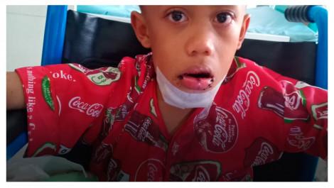 Abdul Ajiz Terancam Cacat Setelah Rahangnya Cedera
