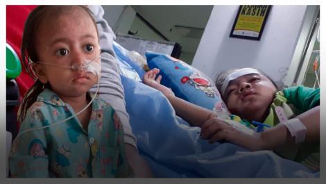 Sejak Usia 3 Tahun, Devi Menderita Lupus