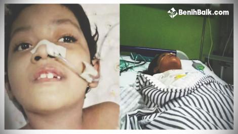 Ringankan Cobaan Naya Yang Terkena Meningitis Dan Cerebral Palsy