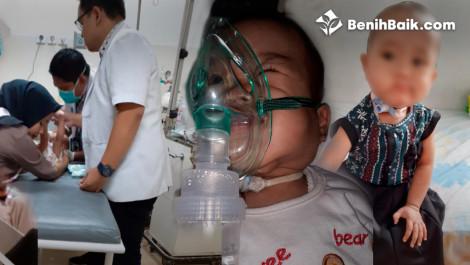 Balita Kirana Harus Melawan Tumor Dan Hydromacoli