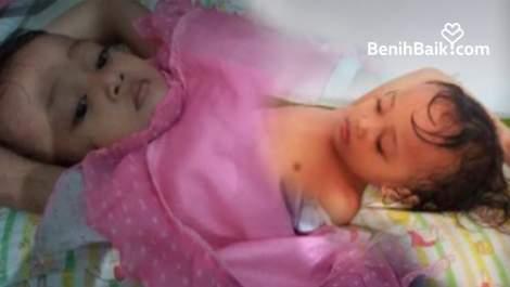 Perut Naura Sakit, Dia Harus Operasi Lubang Anus Secepatnya