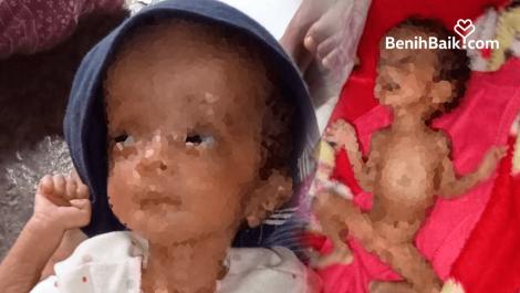 Lahir Prematur, Anisa Derita Hidrosefalus dan Butuh Biaya Pengobatan